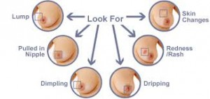 look-for-this-at-your-breast-check